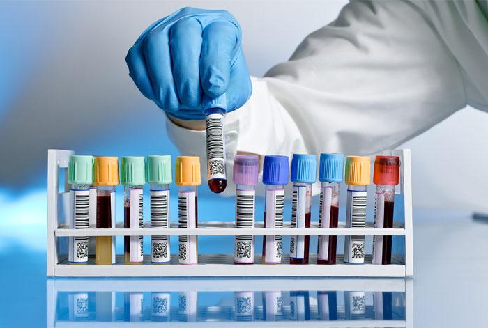 ბაქტერიული ენდოტოქსინის ტესტები